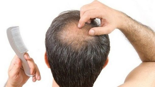 hair loss and hair growth treatment malaysia