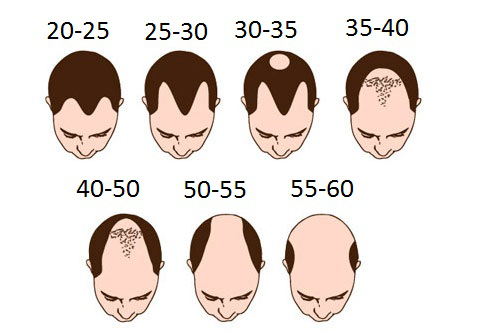 baldness by age