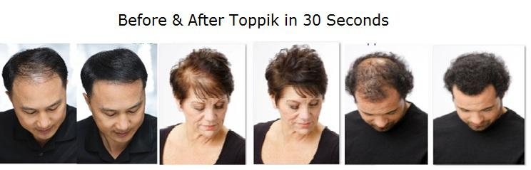 toppik hair transplant
