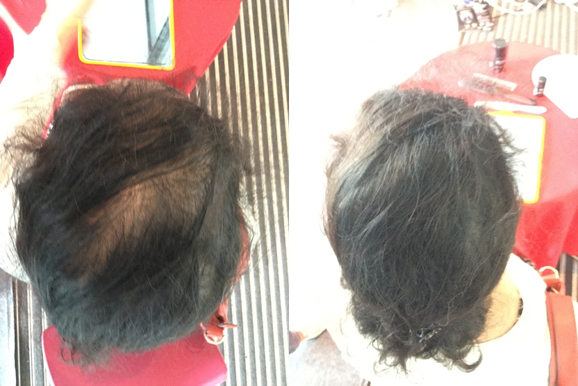 A local women use toppik instant hair replacement service in malaysia