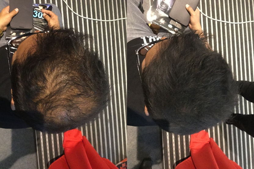 Azam trying toppik hair loss remedy in malaysia