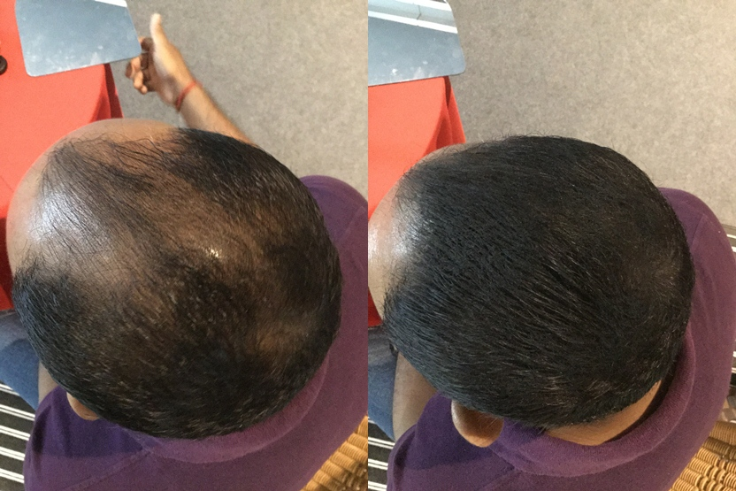 hafiq using toppik instant hair transplant