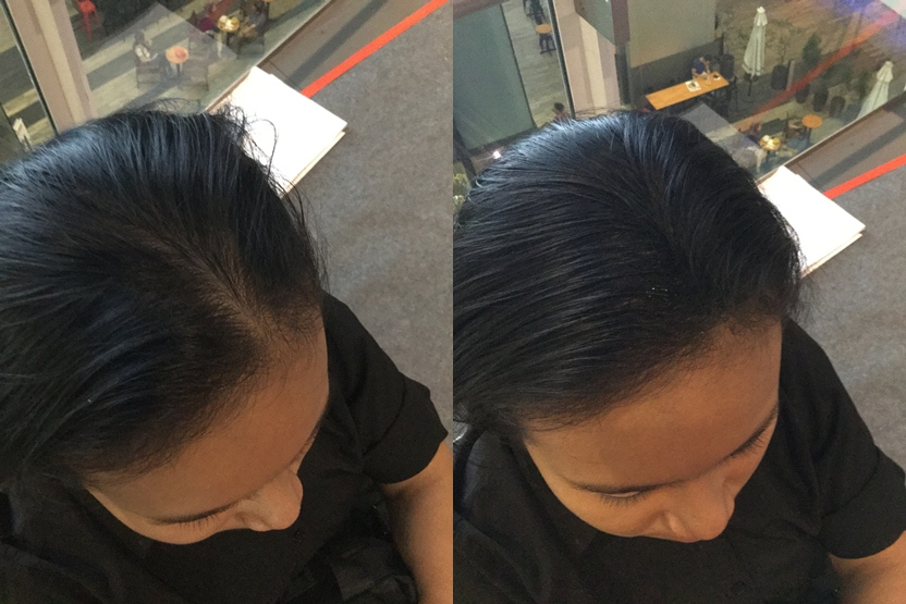 siti aisha trying out our toppik hairloss treatment in malaysia