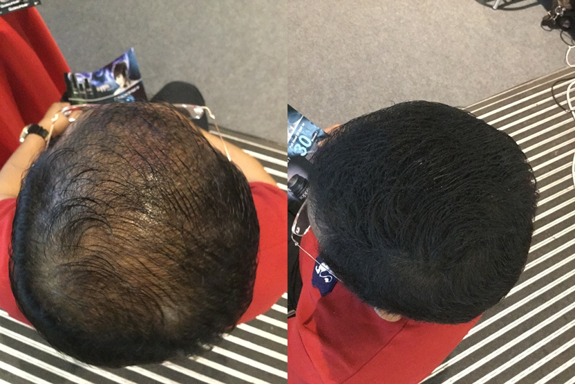 amrul use toppik and get instant professional hair treatment result