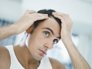 Hair-Loss-Treatment-for-Men