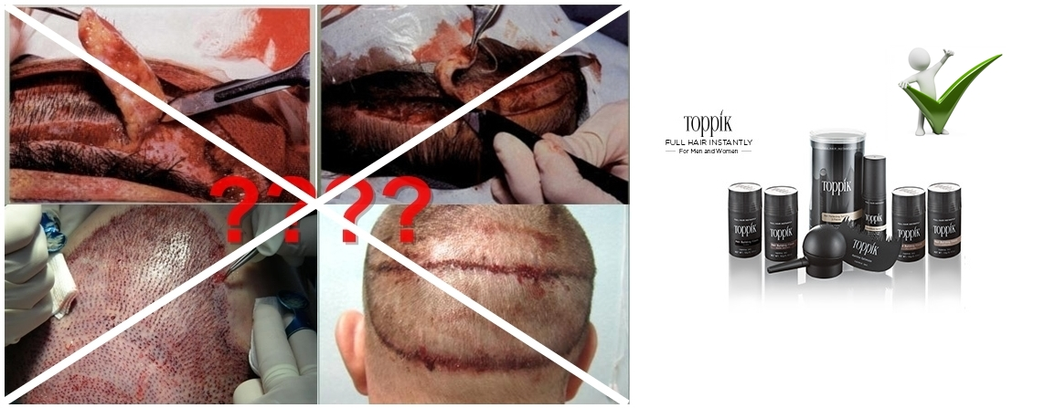 Hair Transplant In Malaysia