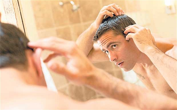 Best-Hair-Loss-Treatment-Tips-for-Men