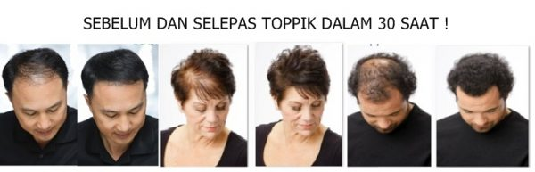 before and after toppik