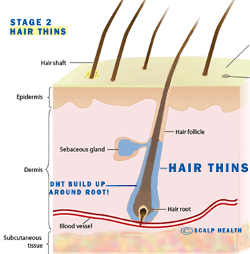 ANTI DHT Hair Loss Treatment Malaysia [How To Combat DHT
