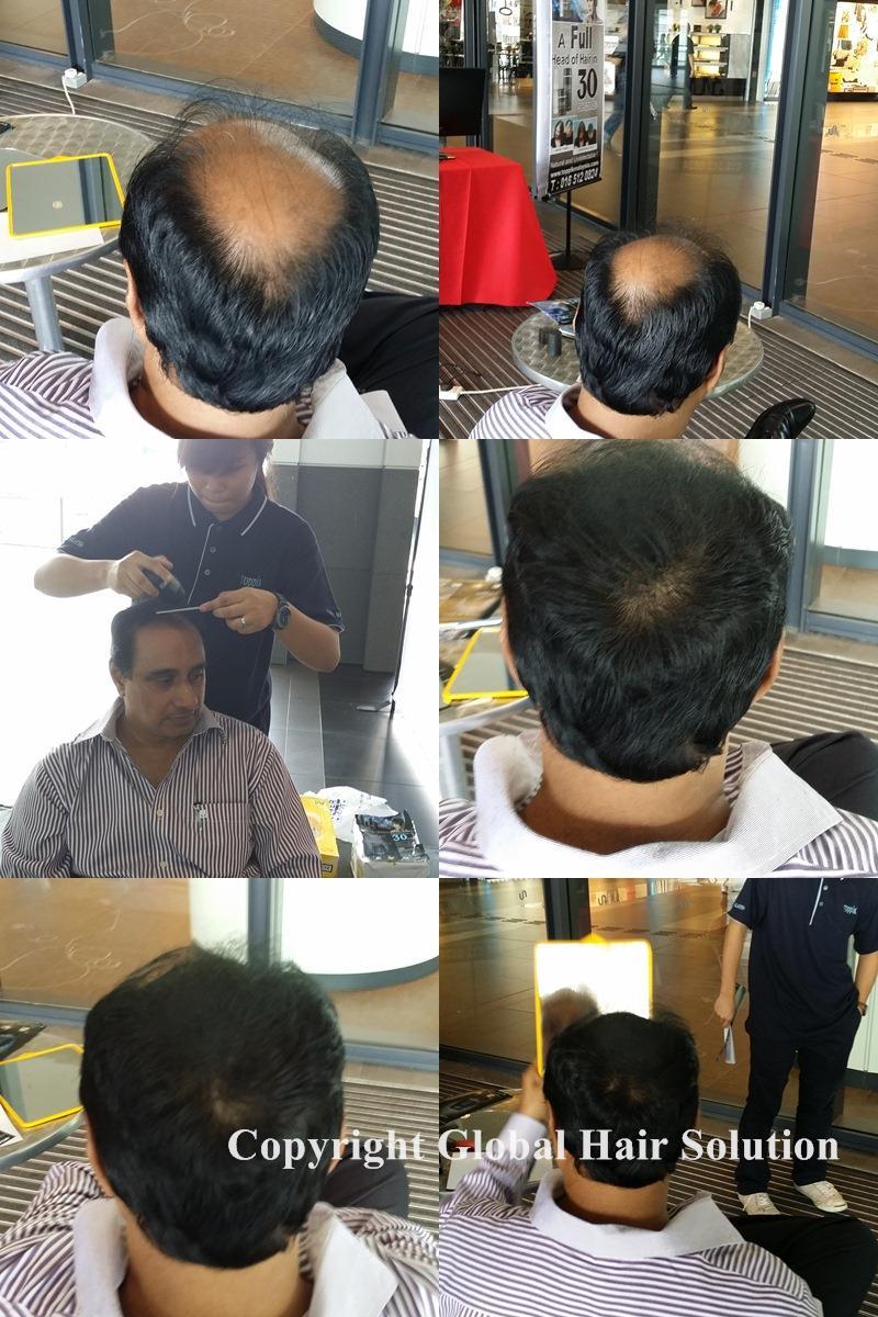 Petua  Untuk  Rambut  Gugur