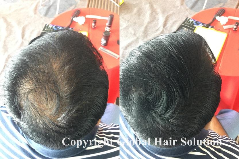 hair grow solution malaysia