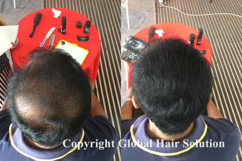 hair replacement with toppik