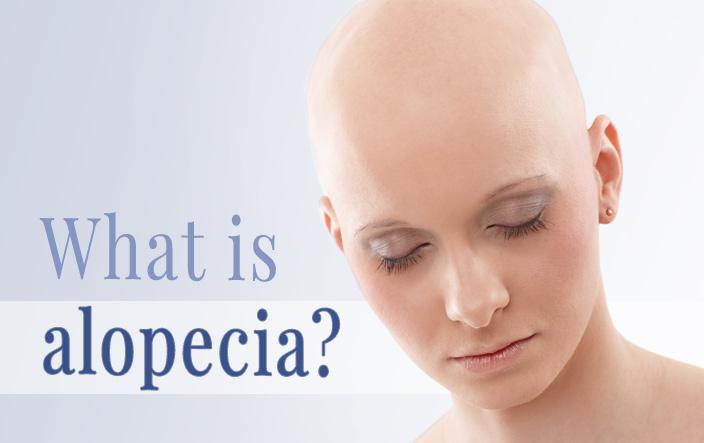 alopecia malaysia