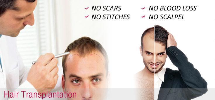 alopecia areata treatment malaysia