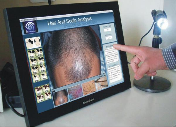 hair loss treatment malaysia