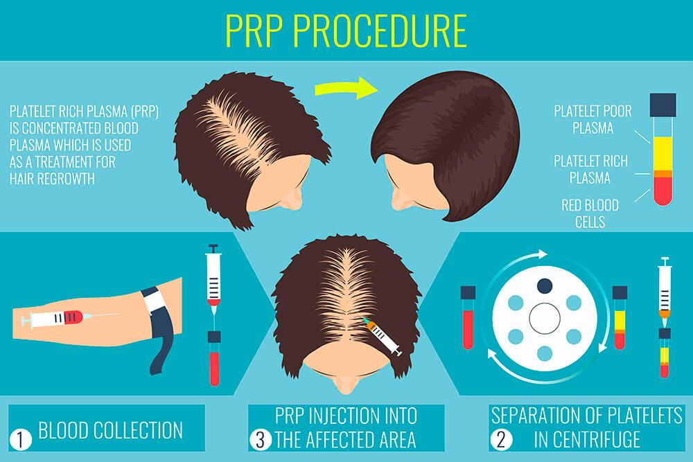 stem cell hair transplant PRP