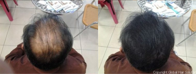 before-after8