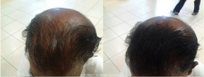 before-after10