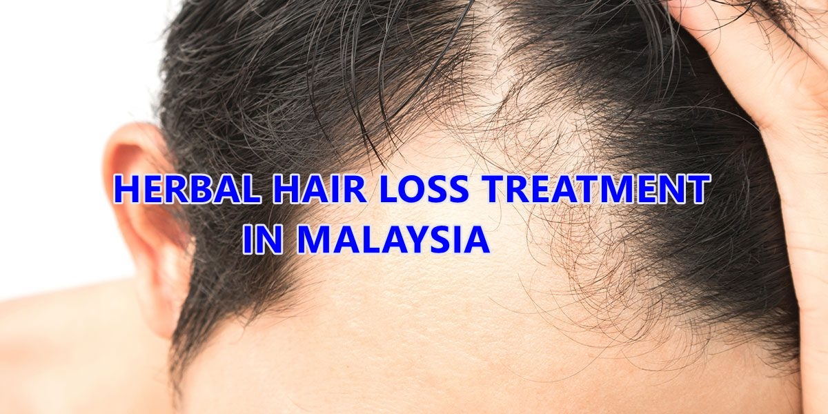 Top 8 Herbal Hair Loss Treatment Centres in Malaysia - Toppik Malaysia