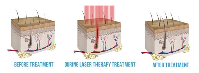 laser treatment for thinning hair
