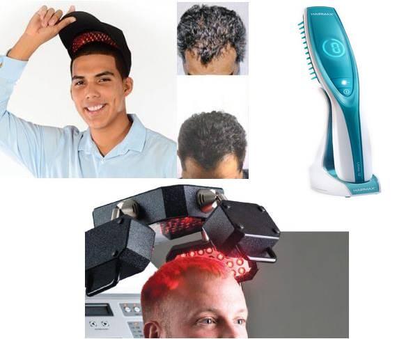 laser hair regrowth treatment