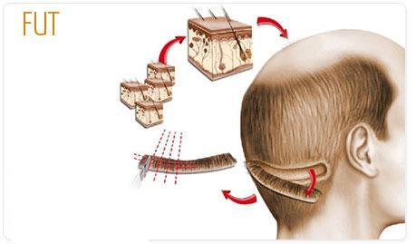 Pemindahan Rambut FUT