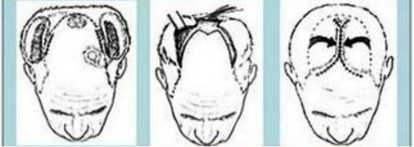 Pengurangan Kulit Kepala (Scalp Reduction)