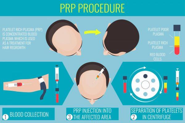 Platelet-Rich Plasma (PRP) Rawatan Sel Stem