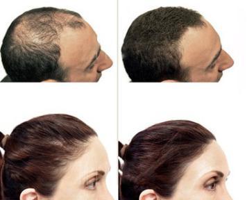 produk melebatkan rambut